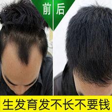 生发液脂溢性防脱发头发增长液增发密发水男女掉发长发剂快速浓密
