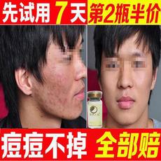祛痘产品闭合性闭口粉刺痘疤淡化痘印女男士前五强青春痘去痘原液