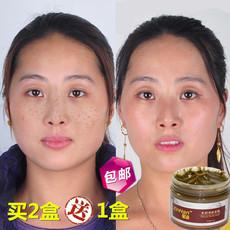 韩国祛斑面膜霜产品去黄褐斑去除遗传雀斑妊娠斑淡化色斑美白正品
