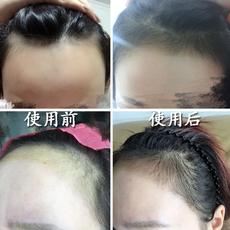 头发增长液快速长发剂生发液防脱发生发增发密发发际线生长液秃顶